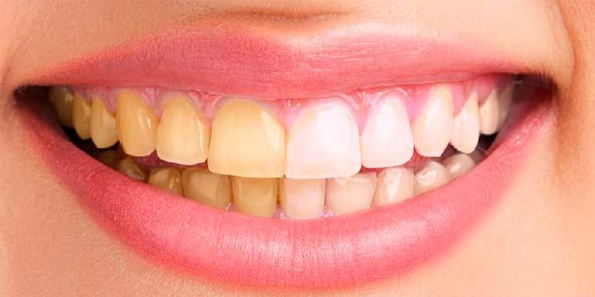 Limpieza dental con Photoshop