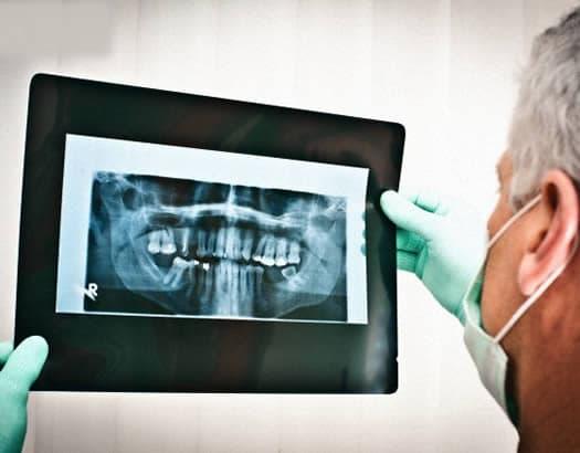 Curso de Radiología Odontológica